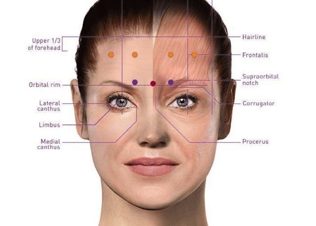 Botox for migranes